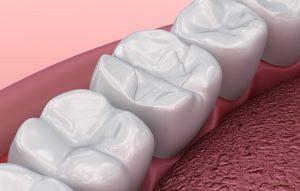 allen dental fillings