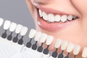 allen teeth whitening