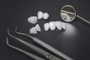 allen dental bridges