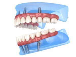 allen implant dentures