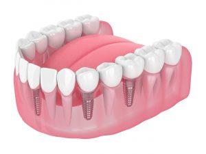 allen dental implants