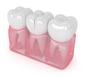 allen dental emergency care