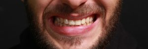 allen teeth grinding