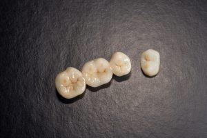 allen dental crowns