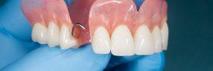 allen partial dentures