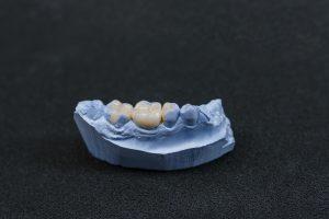 allen dental bridge